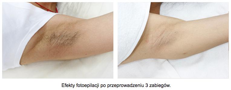 depilacja-laserowa-pacha