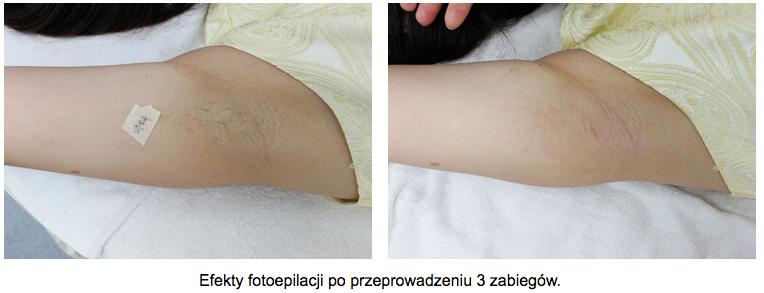 depilacja-laserowa-rece