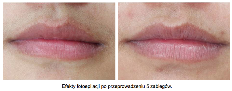 depilacja-laserowa-wasik